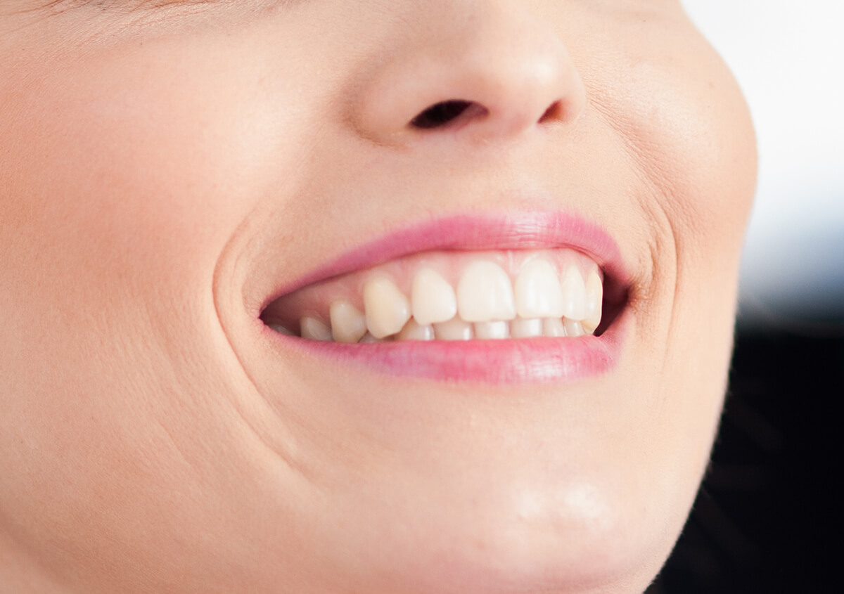 Teeth Whitening at Excel Dental Near Me Springfield Area