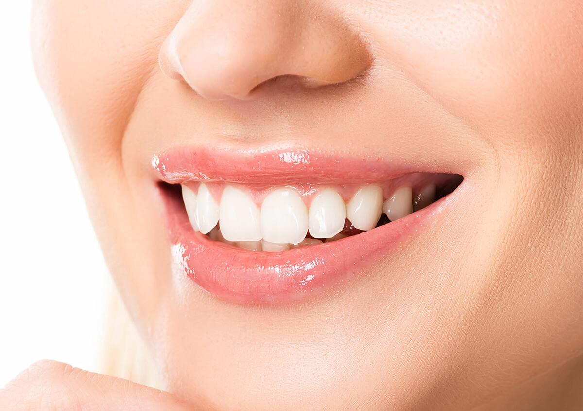 Cosmetic Teeth Veneers in Ozark MO Area